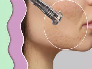 Avantages de la micro dermabrasion