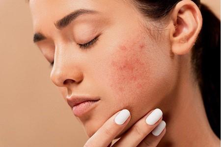 Première conséquence : irritation, acné et autres problèmes connexes